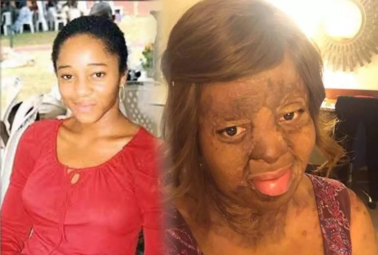 【全美一叮】16岁尼日尼亚遇空难烧伤女死里逃生:音乐是避风港
